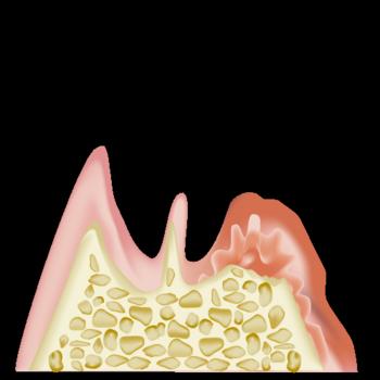real-teeth008.png